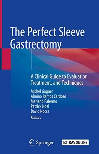 The Perfect Sleeve Gastrectomy: A Clinical Guide to Evaluation, Treatment, and Techniques (English Edition)